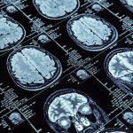 brain bank ms research australia