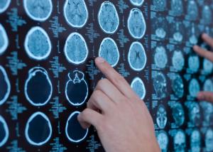 brain-scan progressive MS